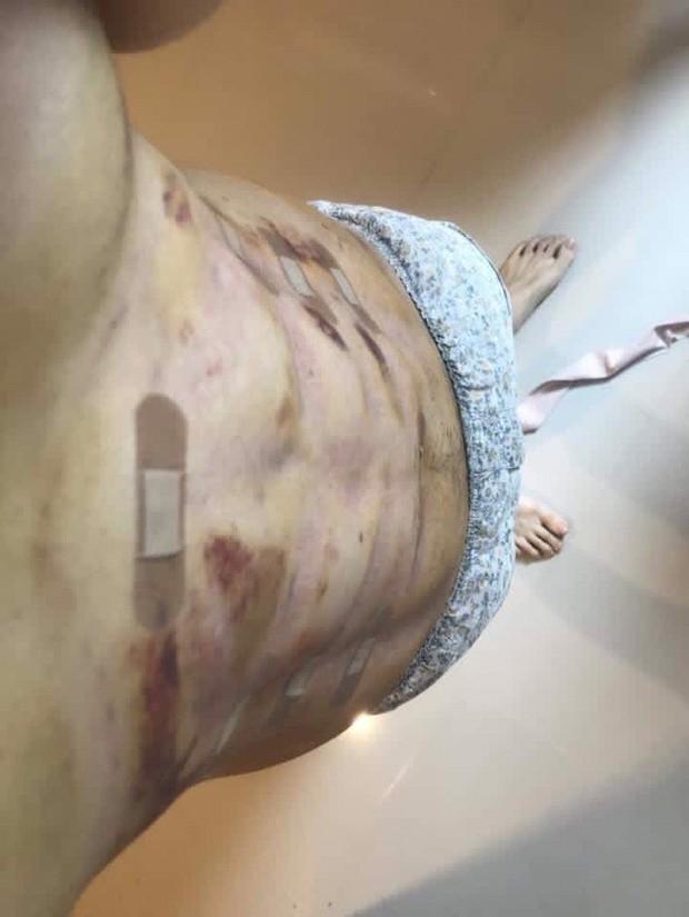 Một trào lưu phẫu thuật thẩm mỹ mới: Đến 6 múi còn giả thì cái gì trên đời này là thật đây? - Ảnh 8.