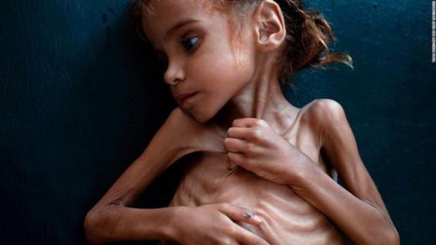 Ám ảnh nạn đói tại Yemen: 85.000 trẻ em tử vong vì thiếu dinh dưỡng - Ảnh 1.