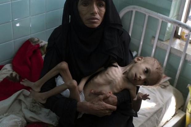 Ám ảnh nạn đói tại Yemen: 85.000 trẻ em tử vong vì thiếu dinh dưỡng - Ảnh 2.