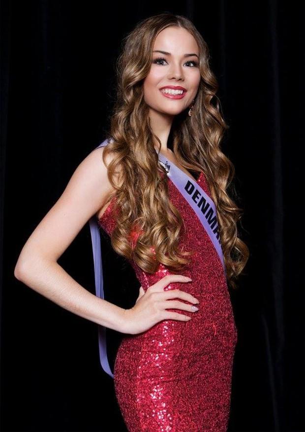 Vượt qua mặc cảm, người đẹp khuyết tật tự tin khoe sắc tại Hoa hậu Siêu quốc gia 2018 - Ảnh 5.
