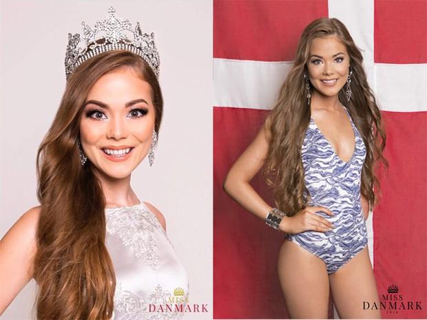 Vượt qua mặc cảm, người đẹp khuyết tật tự tin khoe sắc tại Hoa hậu Siêu quốc gia 2018 - Ảnh 4.
