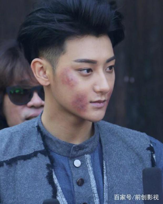 Dở khóc dở cười với nụ hôn không thuận hướng của Hoàng Tử Thao và Trương Tuyết Nghênh trên màn ảnh - Ảnh 2.