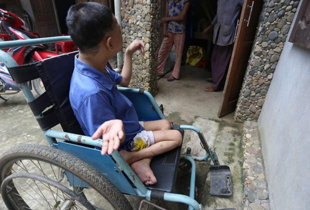 Cô gái bại liệt, nặng 20 kg bất ngờ mang thai - Ảnh 1.