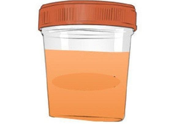 Nhìn màu sắc nước tiểu cũng có thể đoán biết được cơ thể đang gặp vấn đề sức khỏe gì - Ảnh 2.