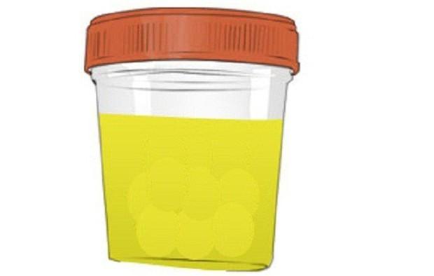 Nhìn màu sắc nước tiểu cũng có thể đoán biết được cơ thể đang gặp vấn đề sức khỏe gì - Ảnh 4.