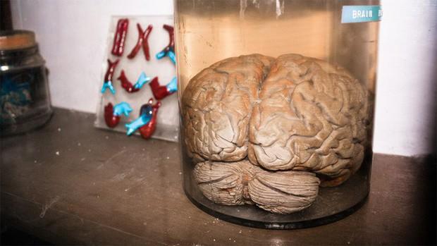 Các nhà khoa học nuôi được não nhân tạo 6 tháng tuổi, lần đầu tiên phát ra sóng não giống trẻ sơ sinh - Ảnh 2.
