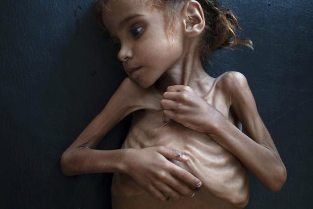 Bé gái trong bức ảnh gây chấn động thế giới về nạn đói đã qua đời, trở thành biểu tượng đau đớn của cuộc khủng hoảng tại Yemen - Ảnh 1.