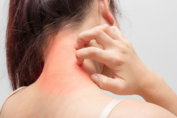 Không khí khô hanh của mùa này rất dễ khiến bạn gặp phải nhiều bệnh vặt và đây là một số cách phòng tránh - Ảnh 5.