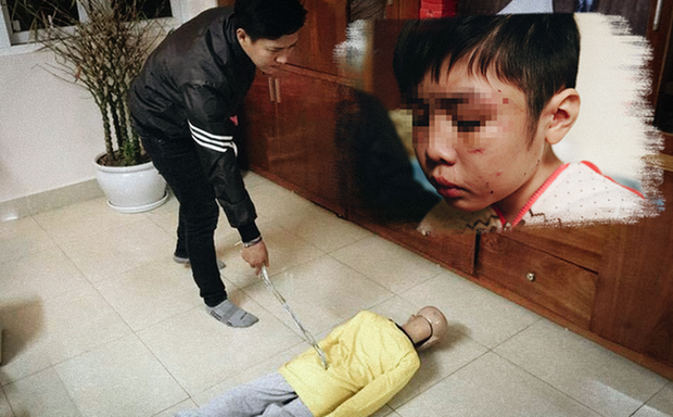 Cha ruột cùng mẹ kế bạo hành con đẻ xin giữ nguyên mức án tù 6 năm 6 tháng - Ảnh 3.
