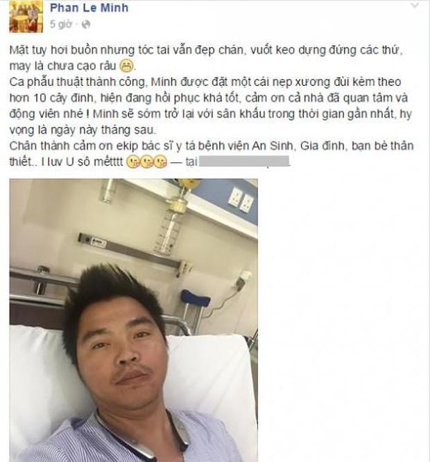 Sao Việt và những lần gặp tai nạn nghiêm trọng: Gãy xương, suy giảm thị lực nhưng vẫn chưa phải điều kinh khủng nhất - Ảnh 4.