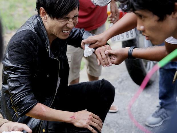 Sao Việt và những lần gặp tai nạn nghiêm trọng: Gãy xương, suy giảm thị lực nhưng vẫn chưa phải điều kinh khủng nhất - Ảnh 6.
