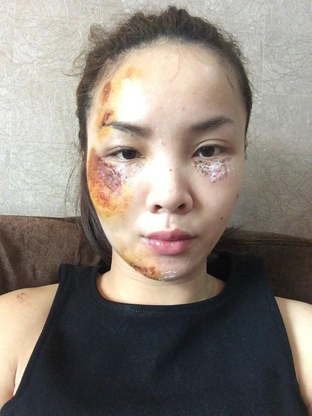 Sao Việt và những lần gặp tai nạn nghiêm trọng: Gãy xương, suy giảm thị lực nhưng vẫn chưa phải điều kinh khủng nhất - Ảnh 8.