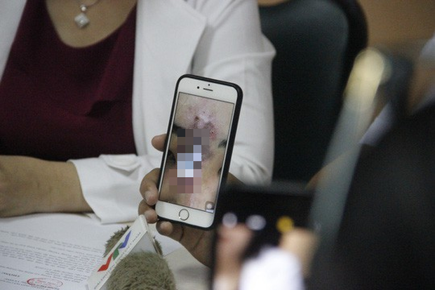 Tiêm chất làm đầy mũi, nữ sinh viên ở Sài Gòn đau đớn vì bị nhiễm trùng hoại tử - Ảnh 1.
