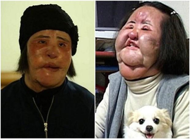 Thảm hoạ dao kéo Han Mi Ok qua đời ở tuổi 57: Thời trẻ điên cuồng thẩm mỹ, mua silicon, dầu ăn ở chợ đen về tự tiêm - Ảnh 1.