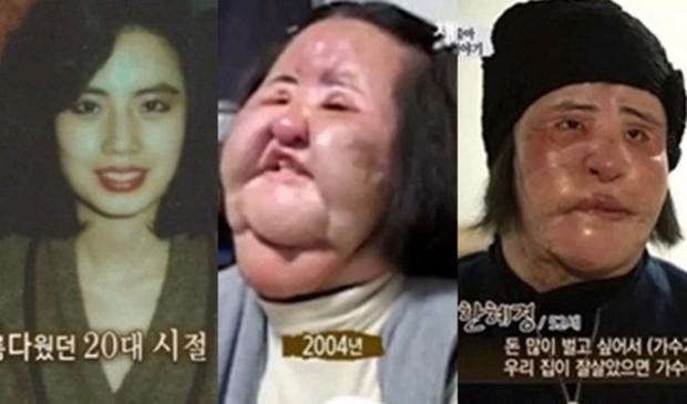 Thảm hoạ dao kéo Han Mi Ok qua đời ở tuổi 57: Thời trẻ điên cuồng thẩm mỹ, mua silicon, dầu ăn ở chợ đen về tự tiêm - Ảnh 3.