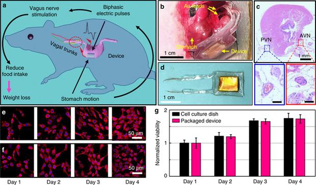 Các nhà khoa học tạo ra một con chip dán vào dạ dày, giúp bạn giảm hoặc tăng cân tùy ý - Ảnh 3.