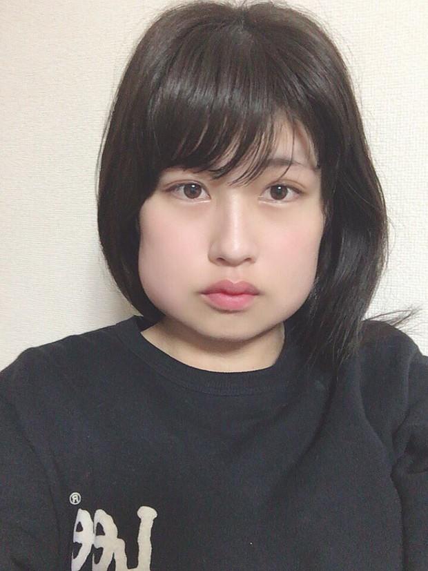 Mặt biến dạng vì mọc răng khôn, hot girl Nhật Bản khiến fan vừa thương vừa không nhịn được cười - Ảnh 2.