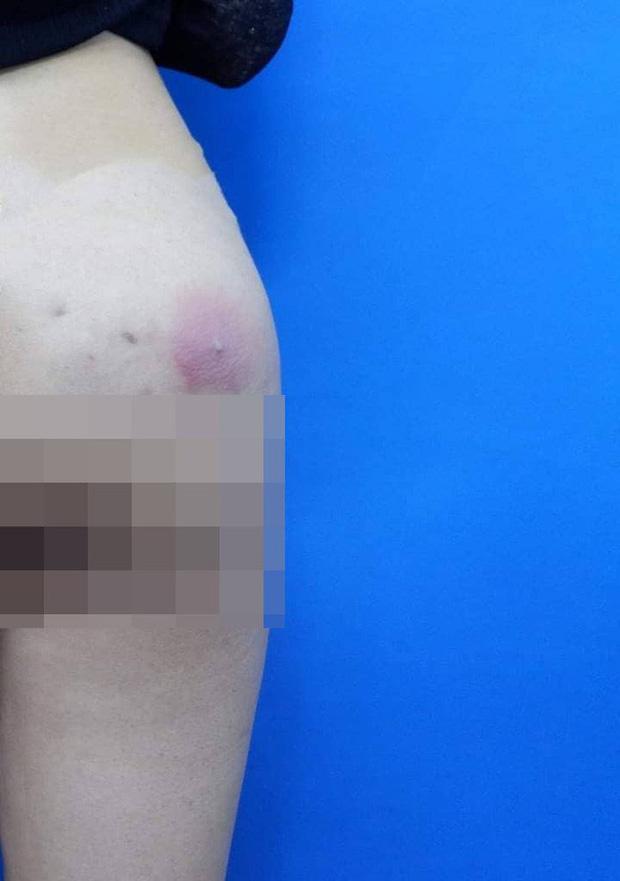 Cô gái 25 tuổi bị nhiễm trùng vì tự bơm silicon vào mông tại nhà: Khuyến báo không thừa của bác sĩ  - Ảnh 1.