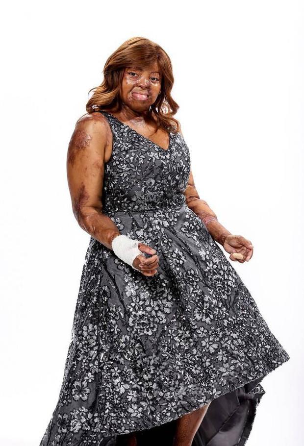 Americas Got Talent tổ chức mùa All Stars, hiện tượng Susan Boyle trở lại tham gia ở độ tuổi 58 - Ảnh 6.