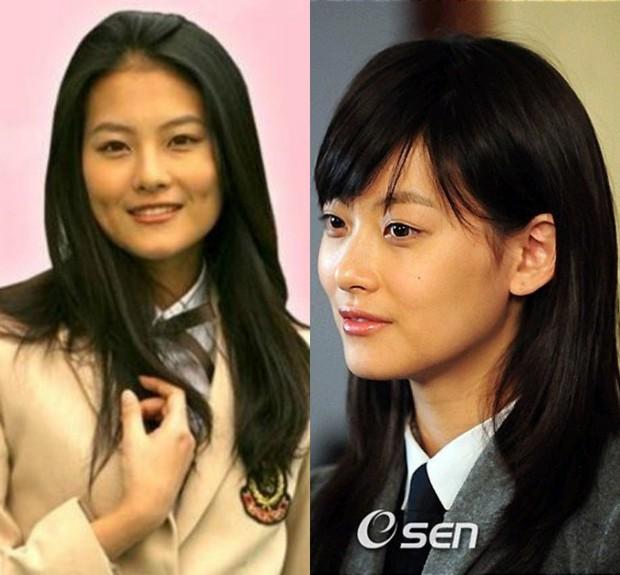 Chuyện phẫu thuật thẩm mỹ của sao Hàn: Người đẹp đến ngưỡng nữ thần, kẻ bị lên án nghiện thẩm mỹ - Ảnh 8.