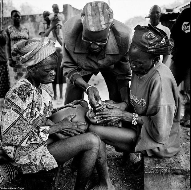 Tục lệ khắc dấu lên đầu trẻ em để đánh dấu thành viên gia tộc ở Châu Phi khiến ai chứng kiến cũng rùng mình - Ảnh 3.