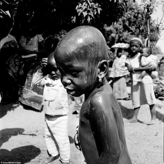 Tục lệ khắc dấu lên đầu trẻ em để đánh dấu thành viên gia tộc ở Châu Phi khiến ai chứng kiến cũng rùng mình - Ảnh 8.