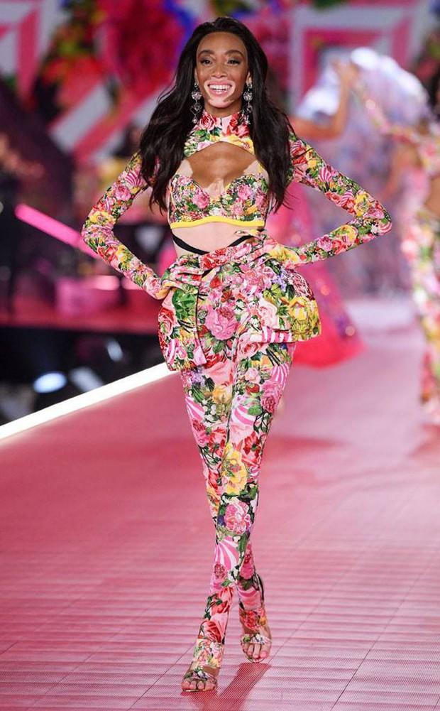 Winnie Harlow: Người mẫu America's Next Top Model vô ơn với Tyra Banks - Ảnh 3.