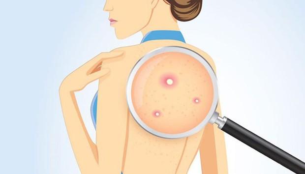 Lười làm sạch những vị trí sau trên cơ thể là nguyên nhân gây ra hàng loạt vấn đề sức khỏe - Ảnh 2.