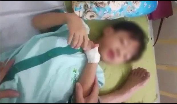 Cháu bé chết sau 1 tháng bị chó cắn nhưng không phải do bệnh dại - Ảnh 1.