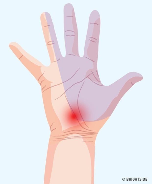 Bàn tay đột nhiên tê buốt ở các điểm này là dấu hiệu bạn không nên xem thường - Ảnh 1.