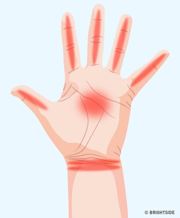 Bàn tay đột nhiên tê buốt ở các điểm này là dấu hiệu bạn không nên xem thường - Ảnh 2.