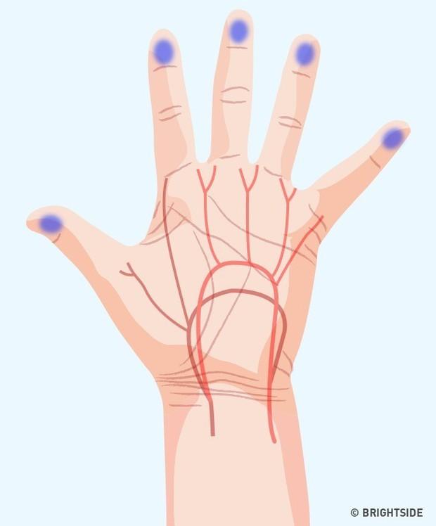 Bàn tay đột nhiên tê buốt ở các điểm này là dấu hiệu bạn không nên xem thường - Ảnh 5.
