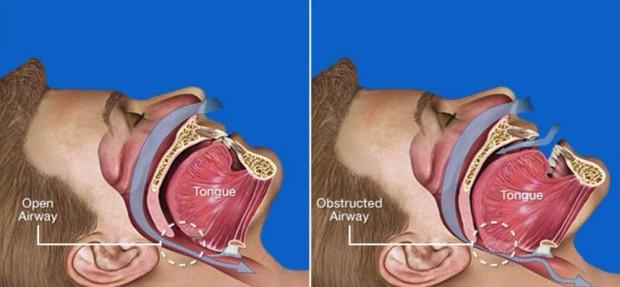 Sáng ngủ dậy hay thấy có triệu chứng đau đầu thì nên tìm hiểu xem nguyên nhân là do đâu? - Ảnh 3.