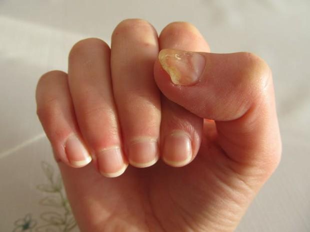 Thấy móng tay có 6 dấu hiệu này thì đừng nên chủ quan xem thường - Ảnh 5.