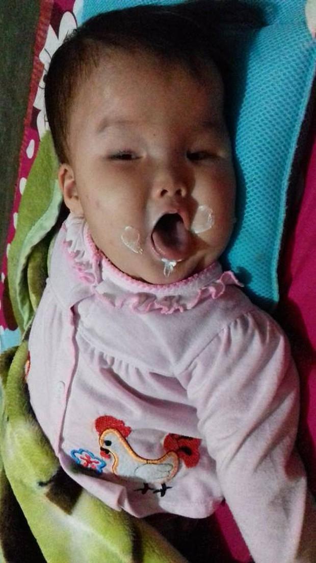 Tâm sự nghẹn lòng của mẹ 9x có con bị não úng thủy: Sợ một ngày con sẽ rời xa mẹ  - Ảnh 2.