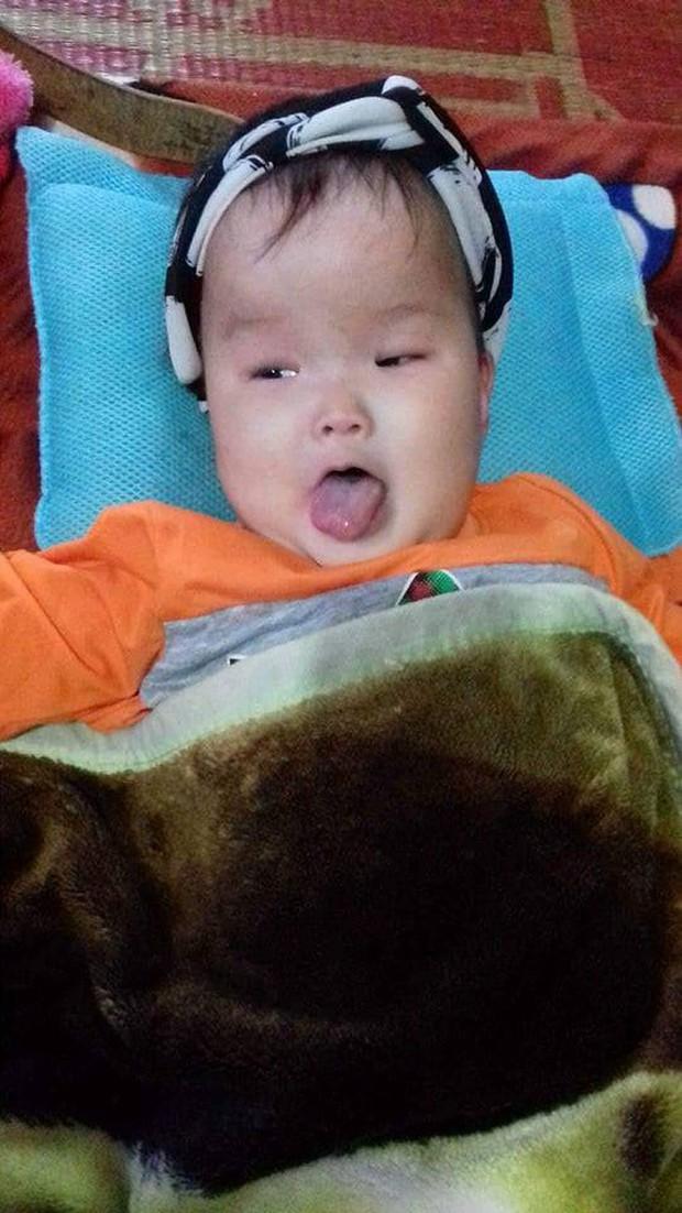 Tâm sự nghẹn lòng của mẹ 9x có con bị não úng thủy: Sợ một ngày con sẽ rời xa mẹ  - Ảnh 3.