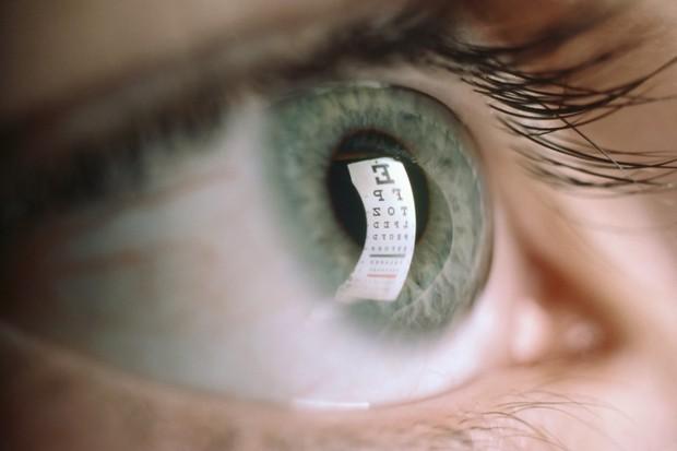 Đừng chủ quan bỏ qua nếu thấy mắt xuất hiện các triệu chứng bất thường sau - Ảnh 1.