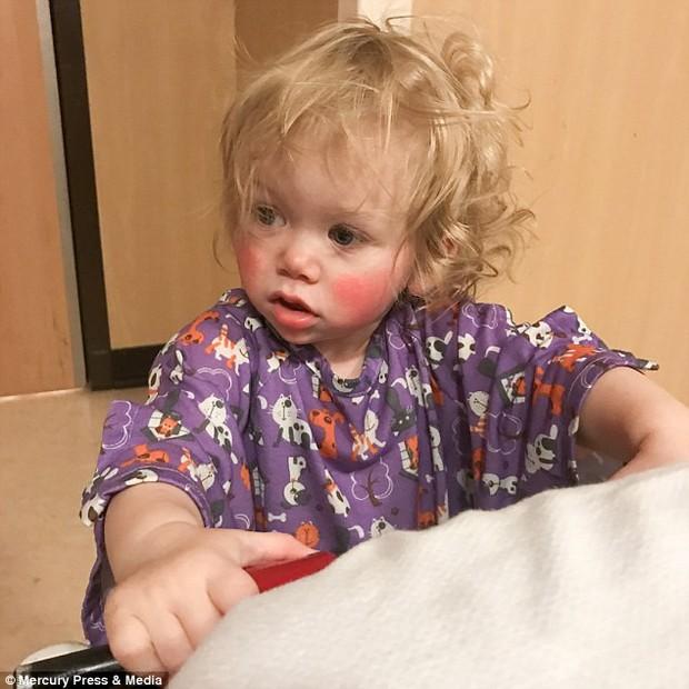 Bé gái bị mắc bệnh dị ứng nước hiếm gặp trên thế giới, ngay cả nước mắt cũng gây đau đớn - Ảnh 3.