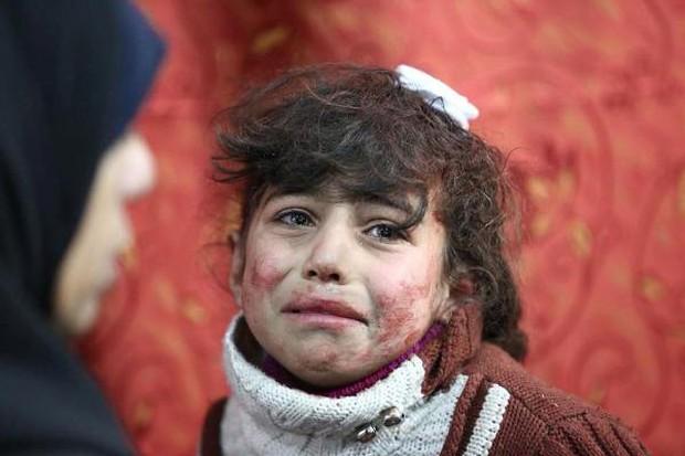 Thảm cảnh của những đứa trẻ tại thánh địa chết chóc Syria: Nỗi đau của các em vẫn chưa có hồi kết - Ảnh 4.