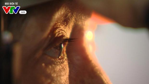 Cận cảnh quá trình ghép giác mạc của bé Hải An cho 2 người bệnh - Ảnh 6.