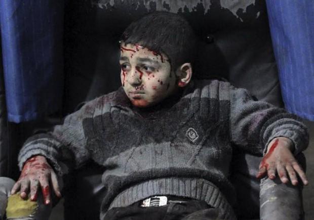 Thảm cảnh của những đứa trẻ tại thánh địa chết chóc Syria: Nỗi đau của các em vẫn chưa có hồi kết - Ảnh 9.