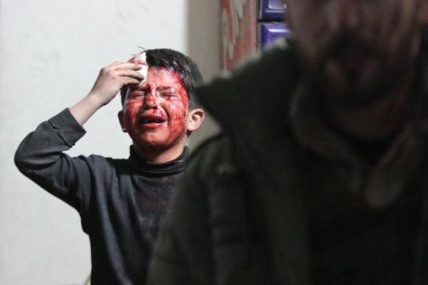 Thảm cảnh của những đứa trẻ tại thánh địa chết chóc Syria: Nỗi đau của các em vẫn chưa có hồi kết - Ảnh 16.