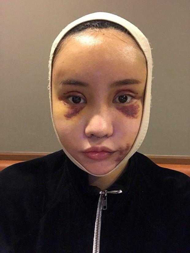 Hot Facebooker Thái Lan bật mí quá trình phẫu thuật thẩm mỹ đau đớn nhưng trả về kết quả đẹp xuất sắc - Ảnh 3.