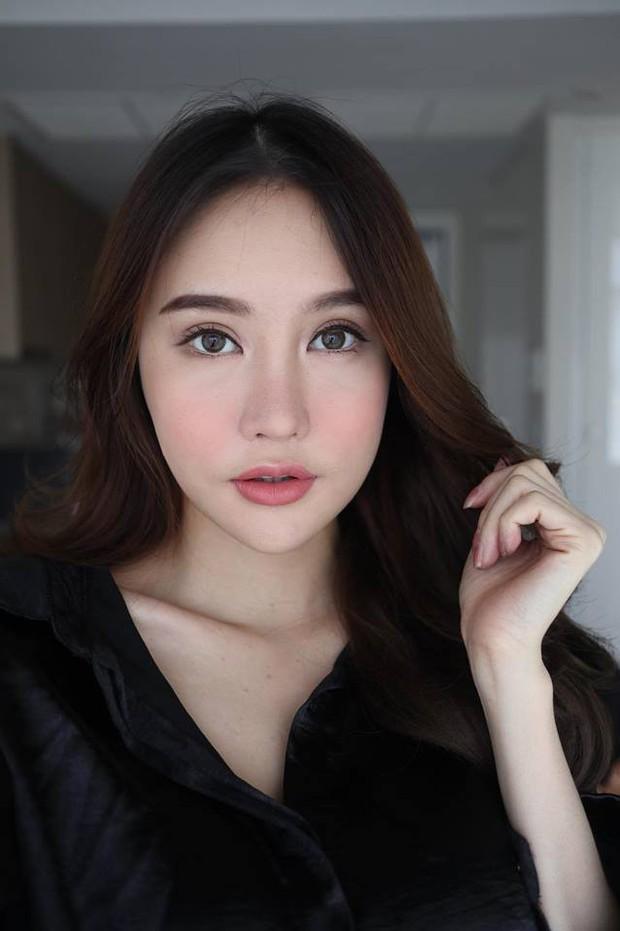 Hot Facebooker Thái Lan bật mí quá trình phẫu thuật thẩm mỹ đau đớn nhưng trả về kết quả đẹp xuất sắc - Ảnh 5.