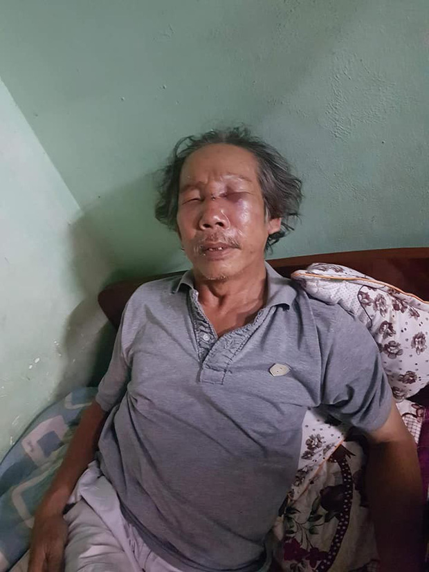 Clip phẫn nộ: Đến thăm con, cụ ông bị bảo vệ chung cư ở Sài Gòn đánh dã man đến gãy sống mũi - Ảnh 3.