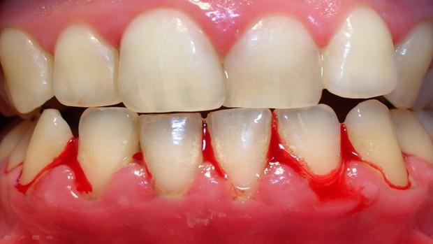 Bọc răng sứ không đảm bảo chất lượng, bạn phải đối mặt với những nguy cơ không ngờ - Ảnh 2.