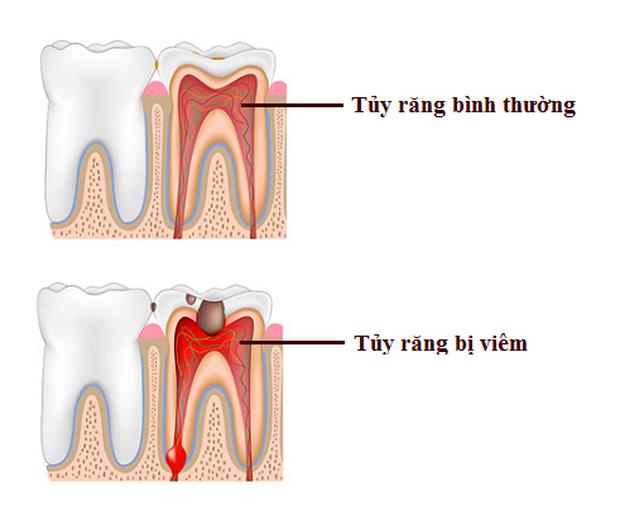 Bọc răng sứ không đảm bảo chất lượng, bạn phải đối mặt với những nguy cơ không ngờ - Ảnh 3.