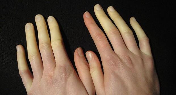 Mùa lạnh rất dễ bị đau đầu ngón tay bởi các nguyên nhân dưới đây - Ảnh 3.