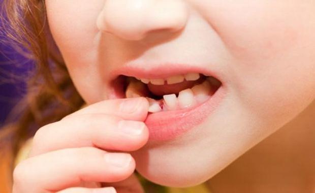 Đây là những lý do khiến bạn phải ngừng ngay thói quen sử dụng tăm để xỉa răng - Ảnh 3.