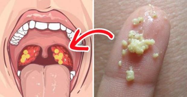 1/4 dân số đang có dị vật này trong miệng và những dấu hiệu khiến nó trở nên kinh khủng - Ảnh 1.